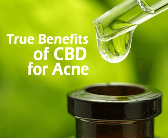 True Benefits of CBD for Acne - AgeVital com